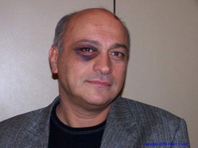 Azmaiparashvili Serbest